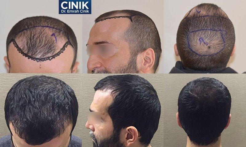 FUE-Haartransplantation 3500 bis 3600 Grafts