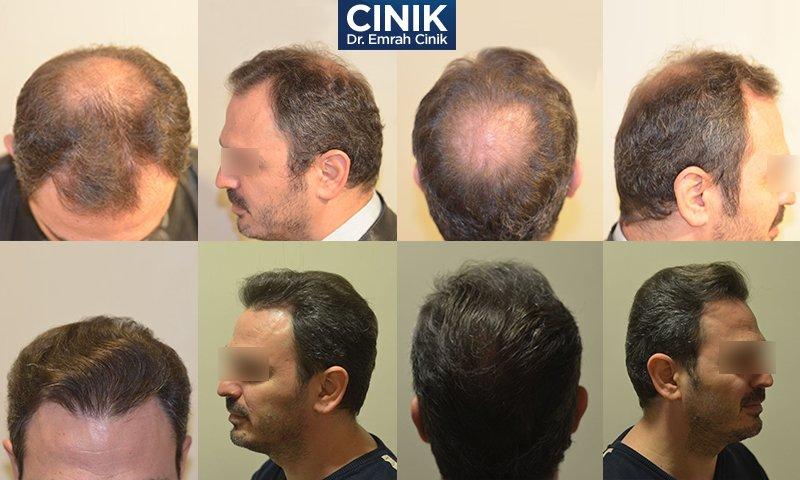 FUE-Haartransplantation 4000 bis 4200 Grafts