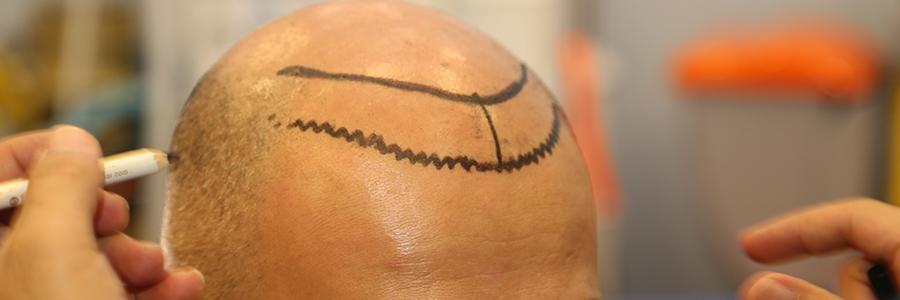 Haartransplantation mit Stammzellen