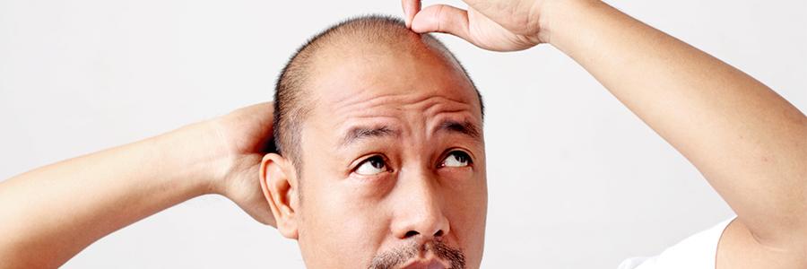 Planung der Haartransplantation